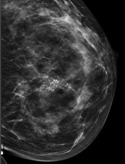 Breast calcification picture