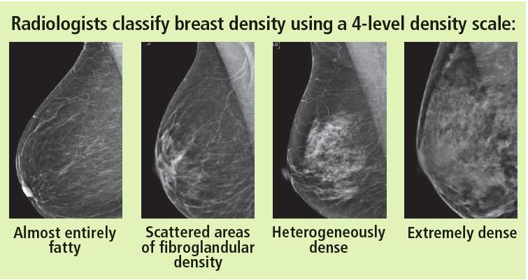 breast density.png