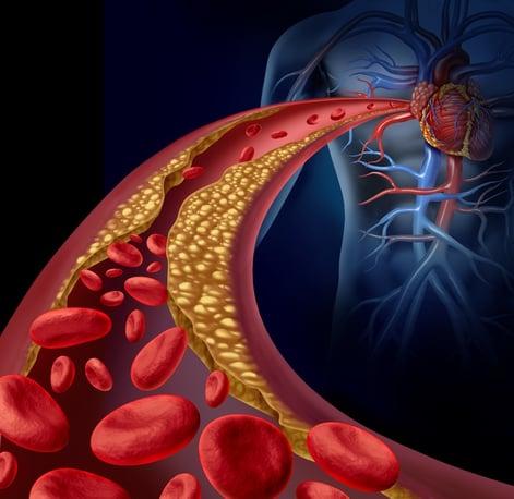 cardiac calcium
