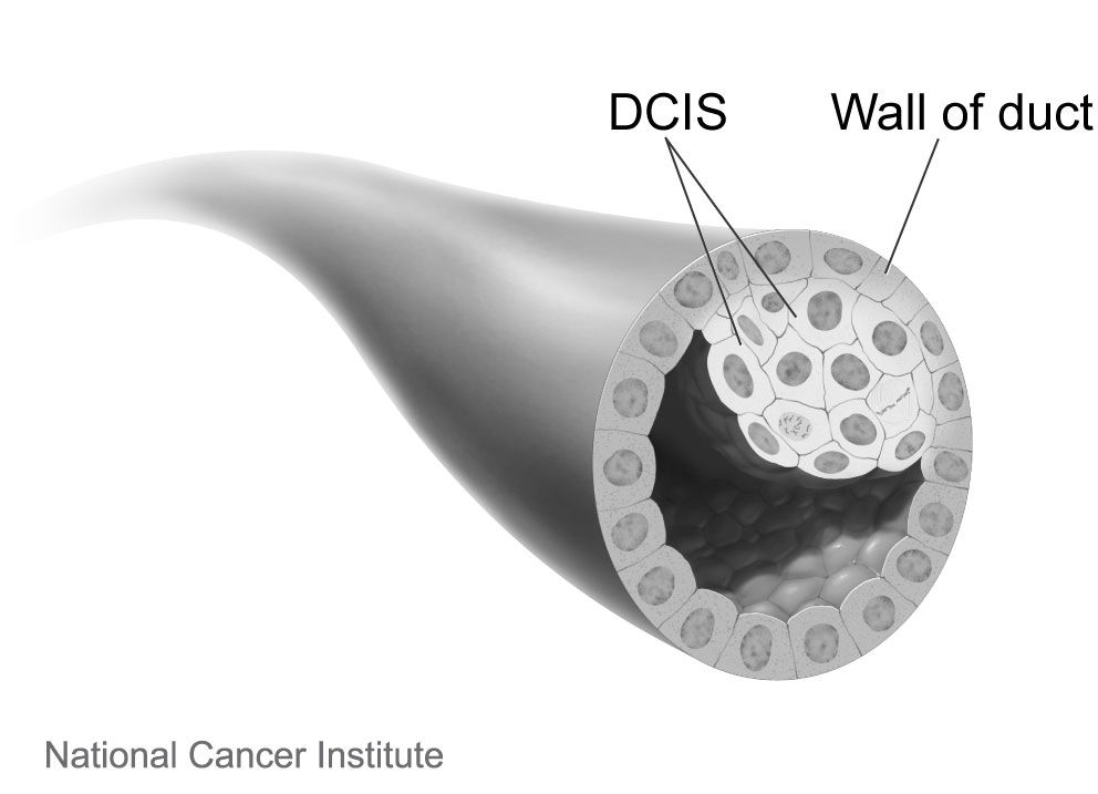 What You Should Know About Ductal Carcinoma in Situ